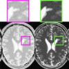 An Integrated Segmentation and Classification Approach Applied to Multiple Sclerosis Analysis