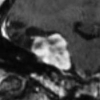 Monitoring slowly evolving tumors