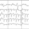 Nonlinear classification of EEG data for seizure detection