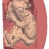 Segmentation of fetal 3D ultrasound based on statistical prior and deformable model