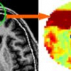 Statistical shape model for automatic skull-stripping of brain images