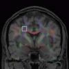 Validation and regularization in diffusion MRI tractography
