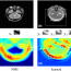 Learning Similarity Measure for Multi-Modal 3D Image Registration