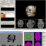 Medical image Processing Group